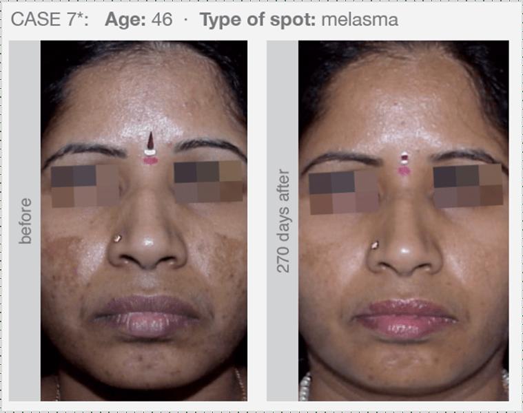 melasma (hormonellt betingad pigmentering)