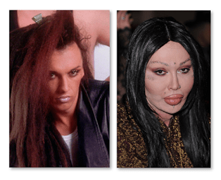 Pete Burns Before And After Plastic Surgery Empire Bbk
