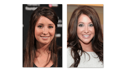 Bristol Palin Plastic Surgery Before And After