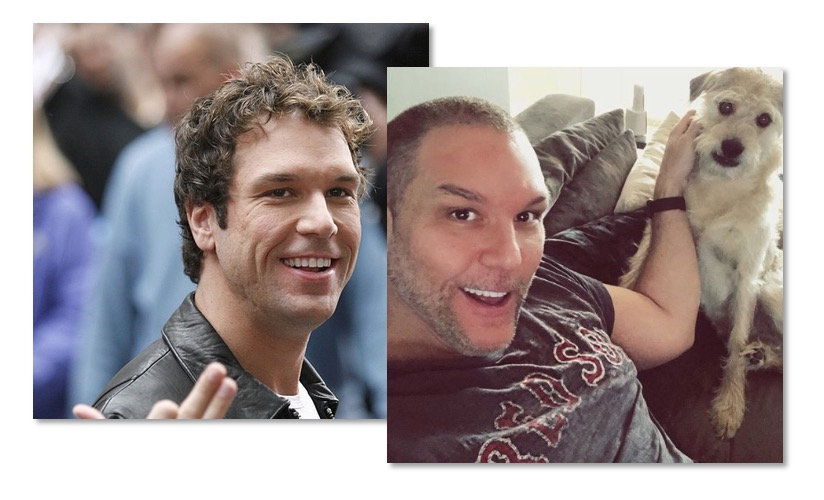 Dane Cook Plastic Surgery: Before And After Pics - Empire BBK