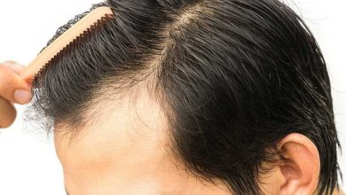 Photo of Can You Continue Sports Activity After Hair Transplant?