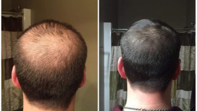 Photo of A Brief Guidance about PRP Hair Transplant in Dubai- How it Works?