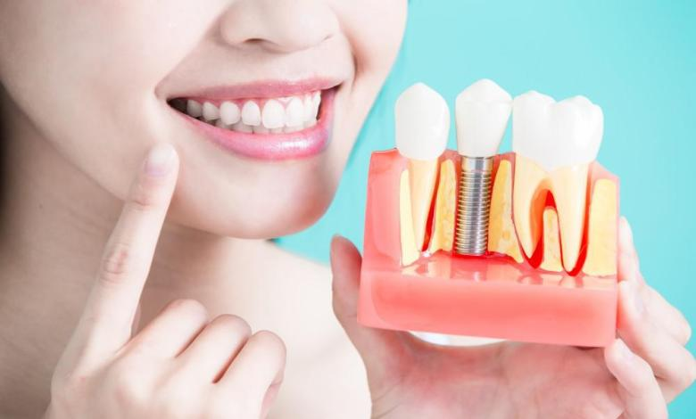 Dental Implants Replacement