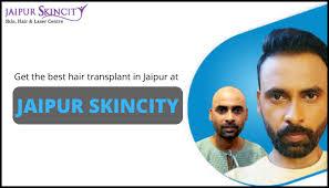 Best Hair Transplant Doctor in Jaipur