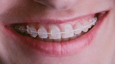 Photo of Braces vs Invisalign: Which Is Better for My Child?