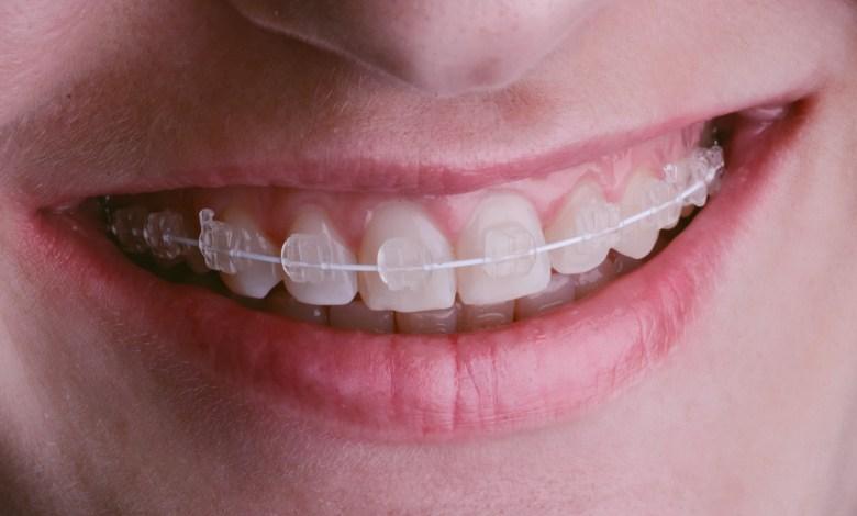 braces vs invisalign