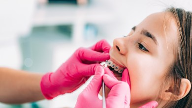 Photo of Why Go to An Orthodontist? 5 Common Orthodontist Procedures