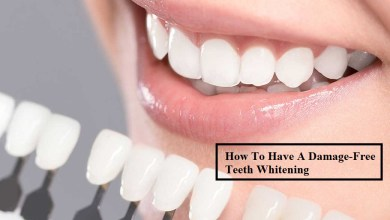 Photo of How To Have A Damage-Free Teeth Whitening