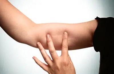 Anticonceptivos bajo la piel