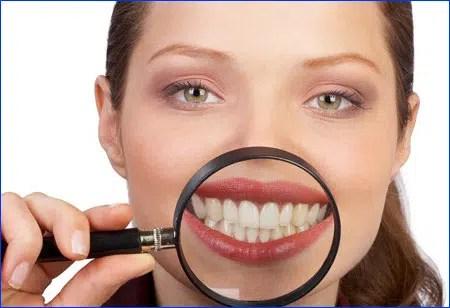 Aprende cómo blanquear los dientes