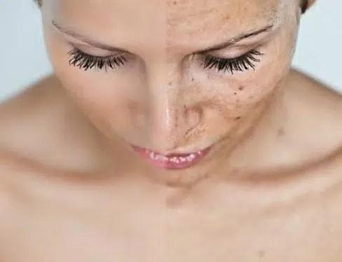 Despigmentación de la piel