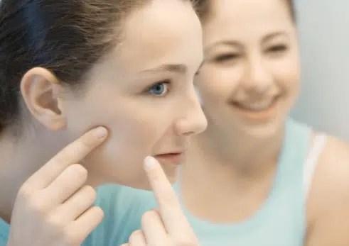 Los alimentos que afectan el acné