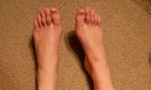 Maneras de prevenir la mordedura de zapatos