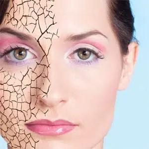 Nueve razones que causan una piel seca