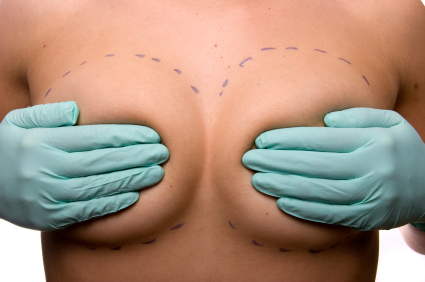 Reconstrucción mamaria. Lo que se debería saber