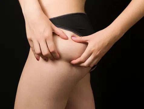 Respuestas a la celulitis ¡Entérate cómo prevenirlas!
