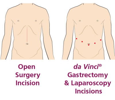 da vinci gastrectomy and laparoscopy incisions