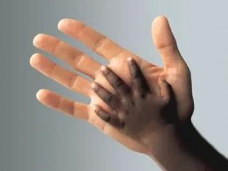 Reflexiones sobre el racismo