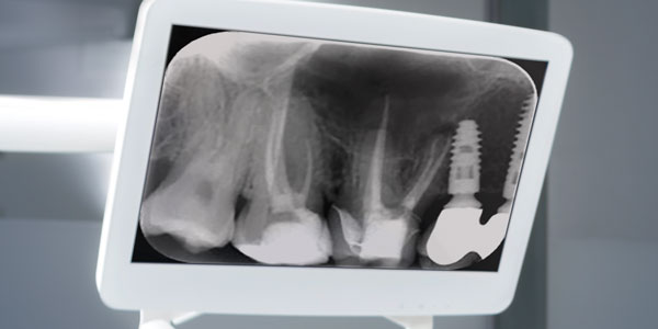 The Benefits And Limitations Of CBCT Endodontic Practice US