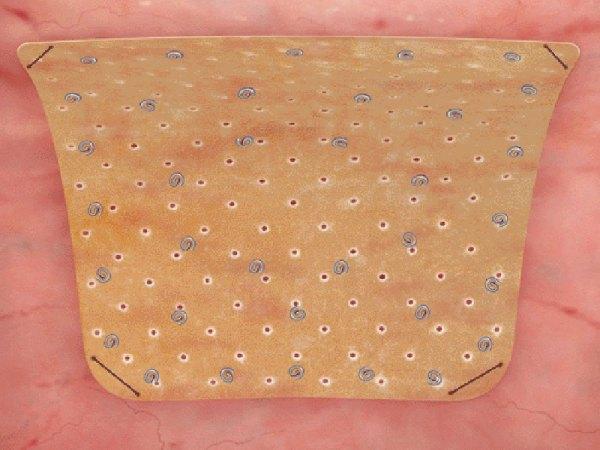 Biodesign 8-Layer Tissue Graft