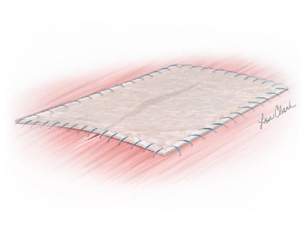 Biodesign Tissue Graft