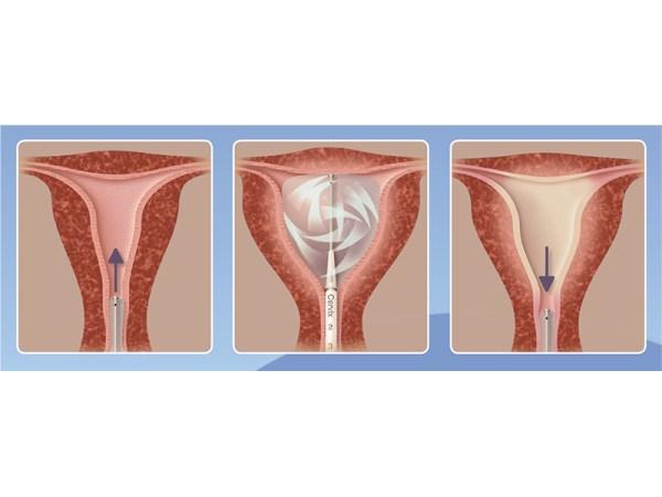 Cavaterm Endometrial Ablation_Insitu