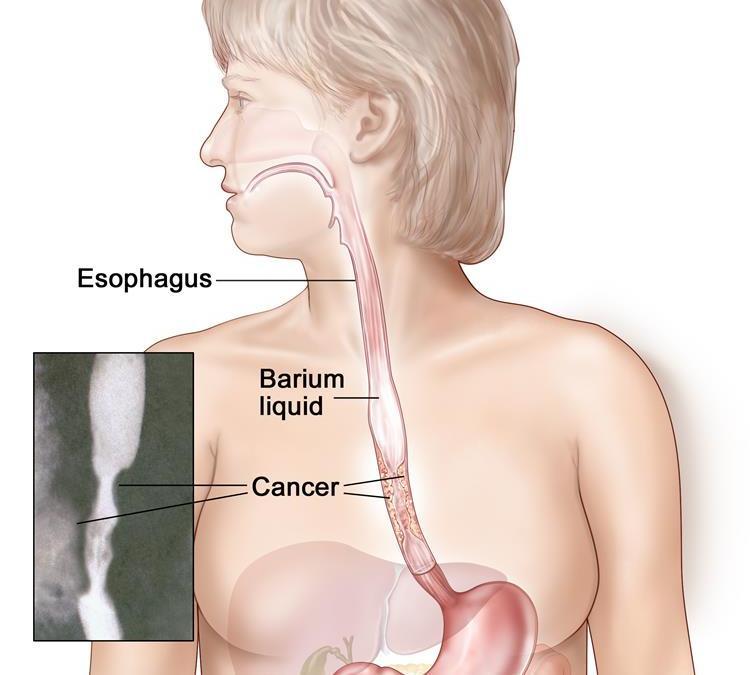 Θεραπεία καρκίνου του οισοφάγου – πληροφορίες για ασθενείς