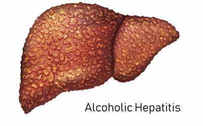 Αλκοολική ηπατίτιδα