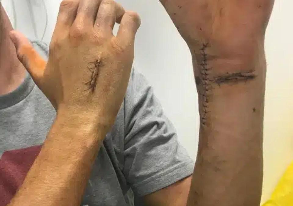 Convalescent : Jonny Walker de retour