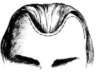 fd1fd13b78ec3996d3e2ca8719225248 - Linie vlasů prozrazují charakterové vlastnosti – 2