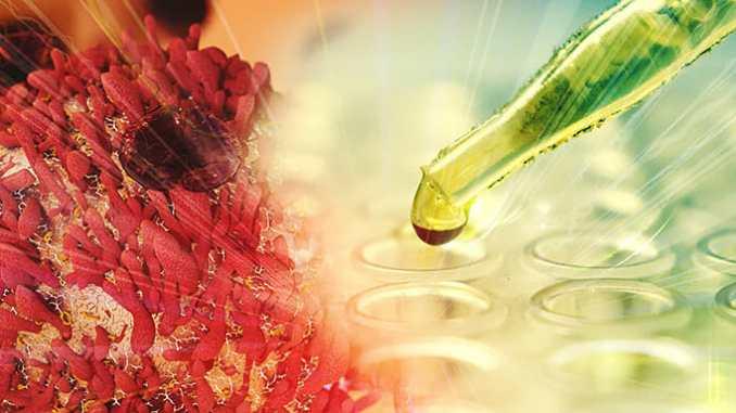 Chemoterapie - je to skutečně jízdenka do rakve?