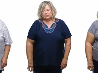 Obezita způsobuje depresi: vědci mají důkaz.