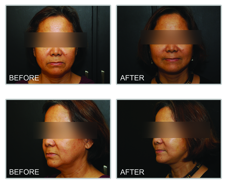 Facelift_Philippines_Before_and_After_Photos1