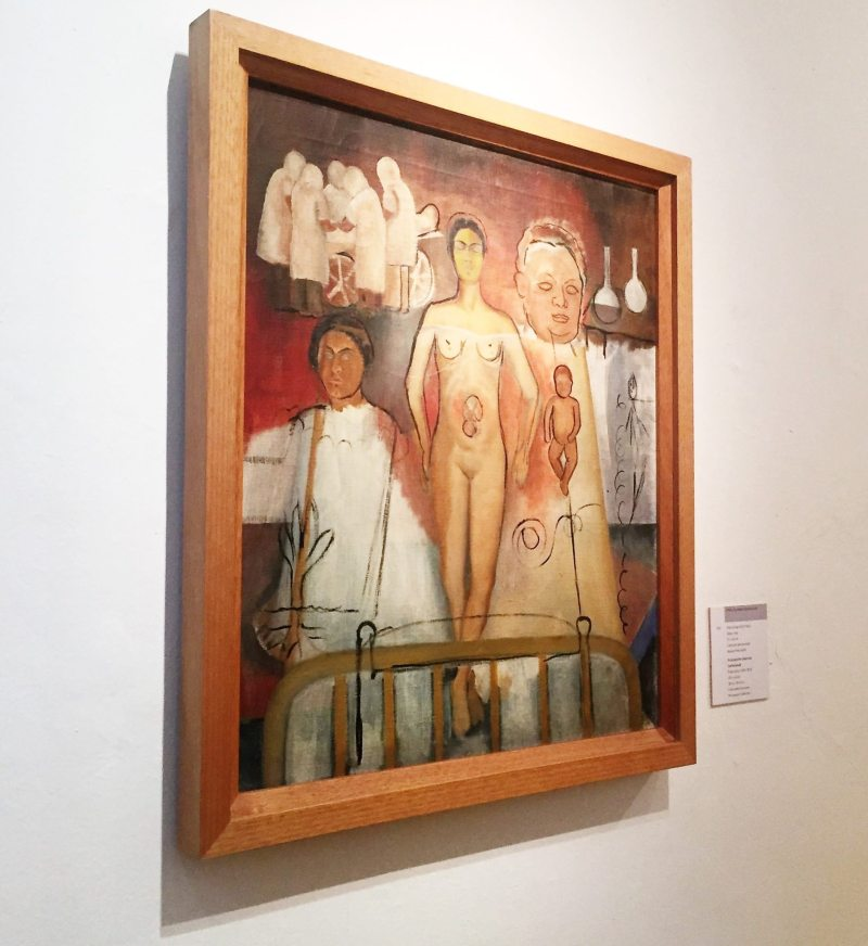 Obra Frida y la Cesárea.