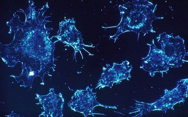 Científicos israelíes descubren tratamiento que convierte las células cancerígenas en normales