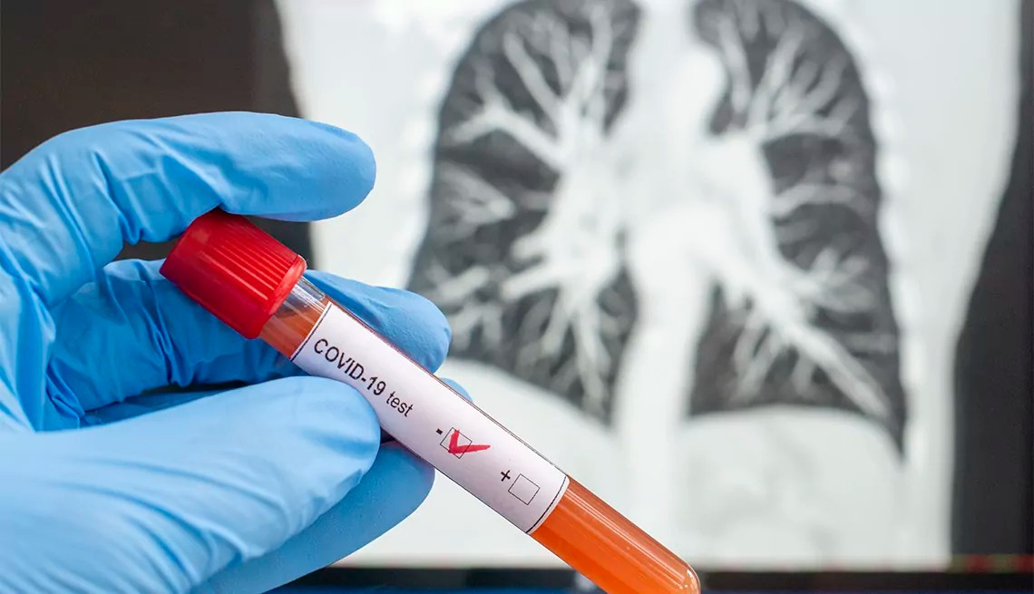 Te presentamos una serie de 43 preguntas que internautas mexicanos han hecho sobre contagio y síntomas del nuevo coronavirus o COVID-19 en nuestro país.