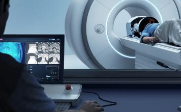 RM- Ultrasonido enfocado para tratamiento de pacientes contemblor esencialrefractario