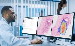 Inteligencia artificial para el diagnóstico del cáncer gastrointestinal