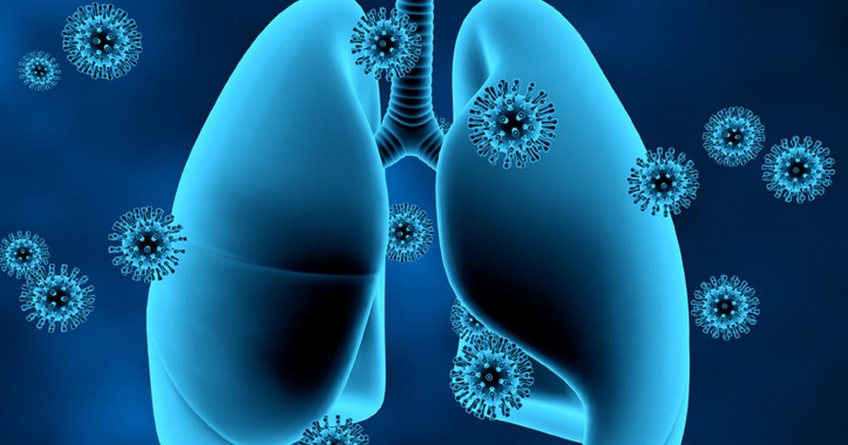 Pulmones-uso de fármaco para COVID-19