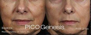 Enlighten-Pico-Before-After2