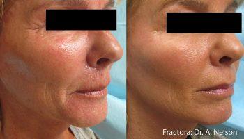 skin-tightening1