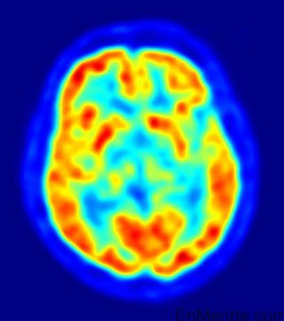 Resonancia magnética funcional