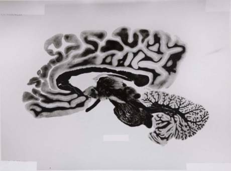 Rossella Biscotti, 168 Sections of a Human Brain, 2009-14. Series of 108 silver gelatin prints on baryth paper, 30 x 40 cm each. Courtesy of the artist