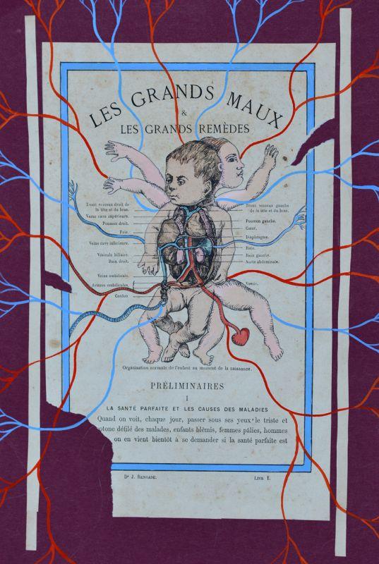 Clara Castagné - Anatomie(s)- 1 parcours, 3 lieux, 10 artistes à Montpellier