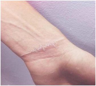 white ink tattoo heart pulse on wrist