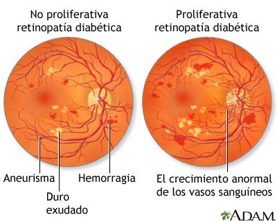 diabetes de retinopatía no proliferativa versus proliferativa