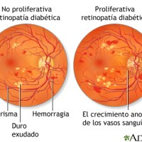 Retinopatía diabética ¿Es aconsejable practicar deporte?