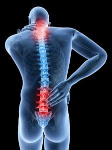 Dolor de espalda cervical y lumbar