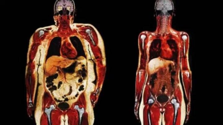 ¿En qué consiste la composición corporal?