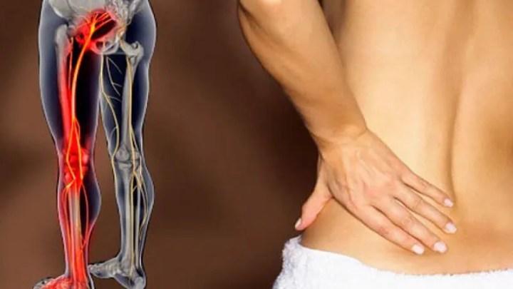 ¿Qué hacer cuando se inflama el músculo piriforme?